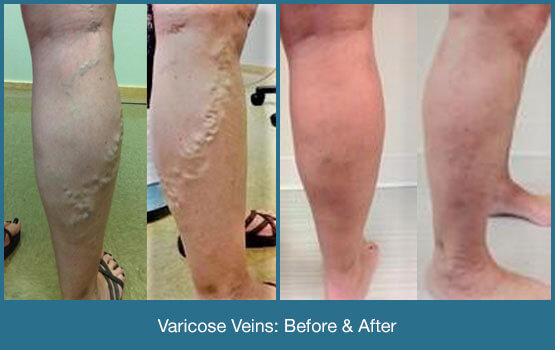 Varicose Veins Before & After Photo